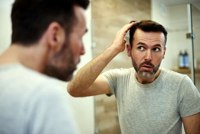 ریزش مو در مردان از زنان بیشتر است و ارثی و هورمون در آن نقش اصلی را دارد