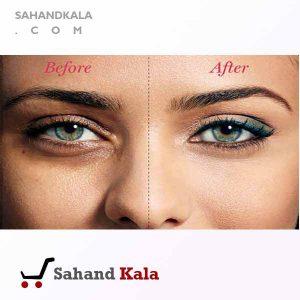 درمان-سیاهی-دور-چشم