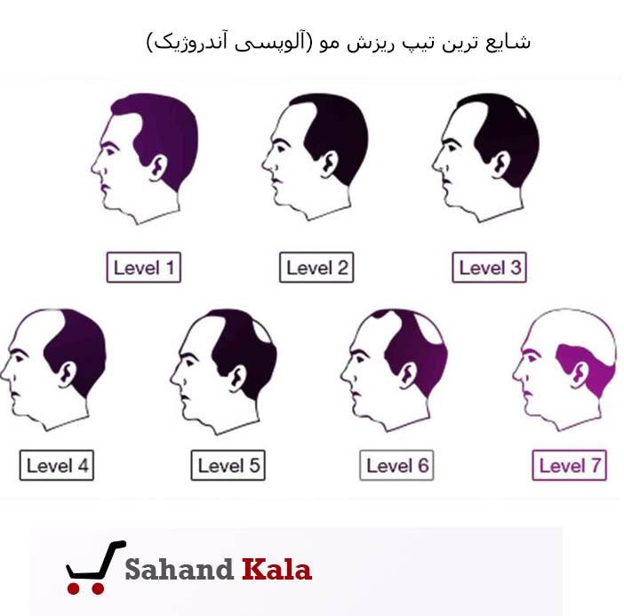 شایع ترین مدل یا تیپ ریزش مو (آلوپسی آندروژیک)